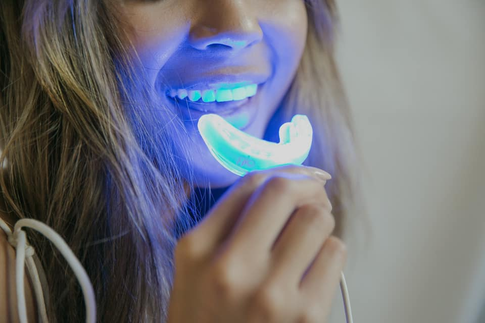 girl using glo teeth whitening system